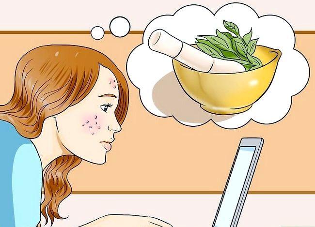 Imaginea intitulată Folosiți remedii din plante pentru rosacea Pasul 3