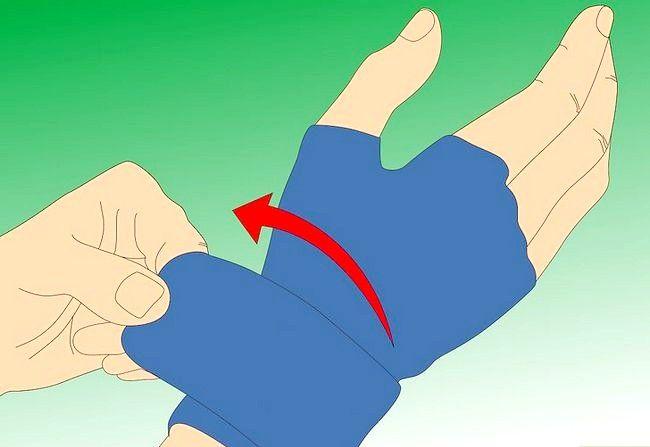 Imaginea intitulată Reduceți degetele umflate Pasul 4.jpeg