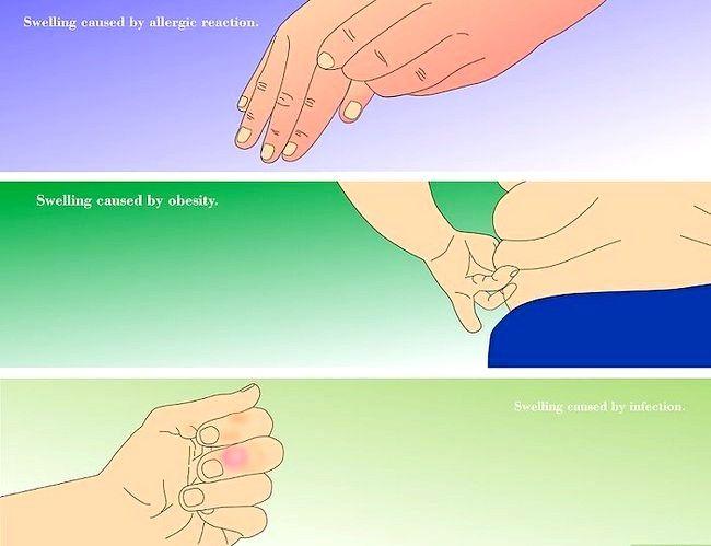Image cu titlul Reducerea degetelor umflate Pasul 9